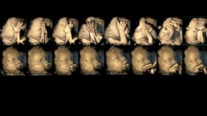 引用: Home> Health Ultrasound Study Reveals How Some Fetuses React to Smoking Moms http://abcnews.go.com/Health/ultrasound-study-reveals-fetuses-react-smoking-moms/story?id=29896418